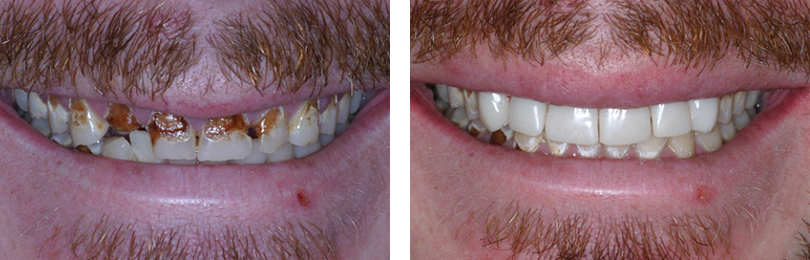 6-composite-crowns-before-and-after