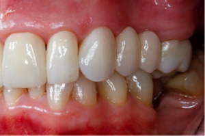 Inserted crowns and bridge | The Smile Pros