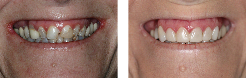 before-and-after-crowns-veneers-implants