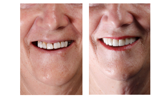 Before and After Crowns and bridges | The Smile Pros