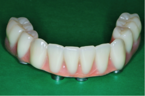 Lower arch implant | The Smile Pros