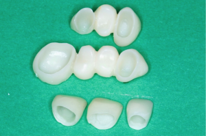 Temporary crowns and bridges | The Smile Pros