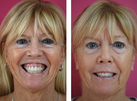 cosmetic-injectables-before-and-after